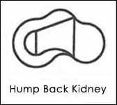 Hump Back Kidney